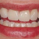 Perfekte Zähne ein Traum für Wenige?